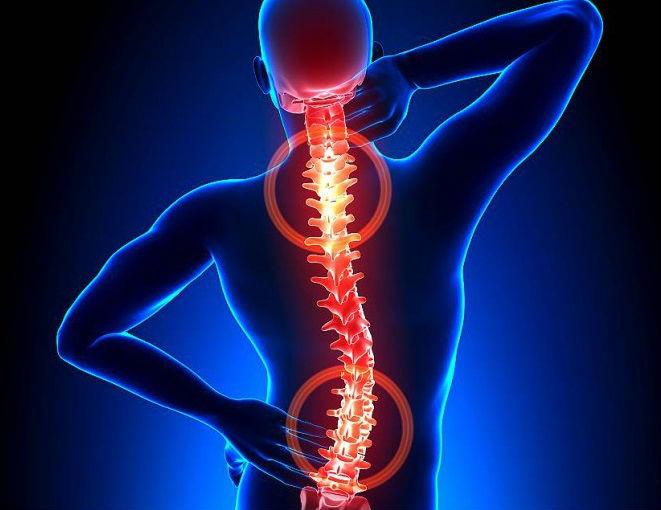 Al cargamento físico duele fuerte la cabeza y el cuello